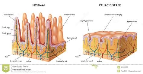 celiac-disease-chart